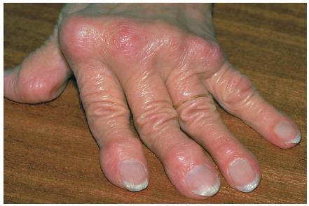 อาธริน็อกซ์ Arthrinox รักษาโรคข้ออักเสบรูมาตอยด์