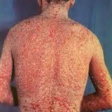 สะเก็ดเงิน (Psoriasis) เรื้อนกวาง การรักษาสะเก็ดเงินที่ศรีษะและหลัง