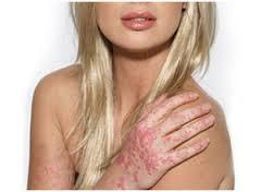 สะเก็ดเงิน (Psoriasis) เรื้อนกวาง การรักษาสะเก็ดเงินที่มือ เล็บ ศรีษะ