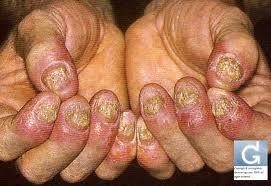 สะเก็ดเงิน (Psoriasis) เรื้อนกวาง การรักษาสะเก็ดเงินที่เล็บ