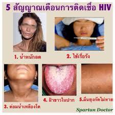 liv-capsule-hiv-aids