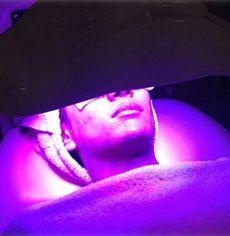 MAGIC LIGHT TREATMENT โปรแกรมฉายแสงรักษาสิว รอยสิว