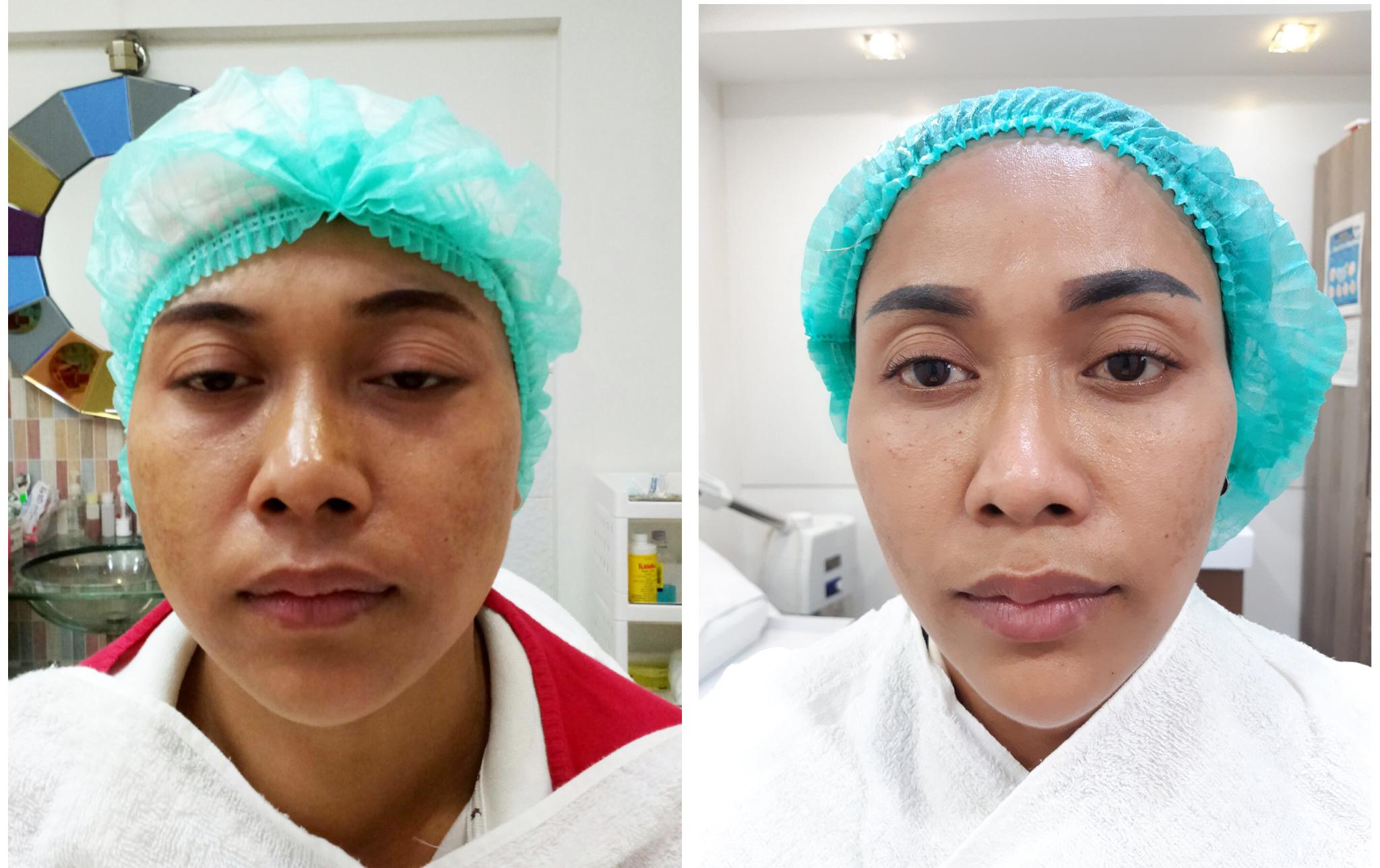 ร้อยไหม ยกกระชับ หน้าเรียว ลดริ้วรอย Filler หน้าเรียว ลดริ้วรอย Botox หน้าเรียว ลดริ้วรอย