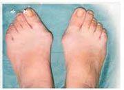 นิ้วหัวแม่เท้าเอียง นิ้วโป้งเท้าเอีบง  เจ็บนิ่วเท้า รักษา เจ็บนิ้วหัวแม่เท้า นิ้วโปงเท้าผิดปกติ