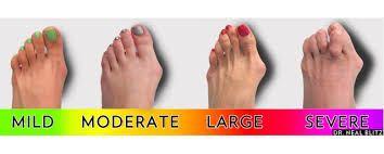 นิ้วเท้าเอียง  นิ้วห้วแม่เท้าเอียง  กระดูกนิ้วเท้าโปน  เจ็บนิ้วเท้า  รักษา  รองเท้าสุขภาพ