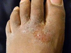 Athletes foot is a fungal infection on the skin