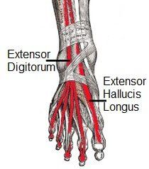 Tendonitis, inflammation of the foot tendons, can cause pain