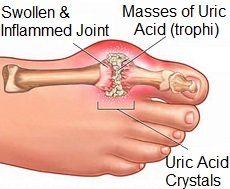 Gout is a common cause of pain and swelling in the big toe