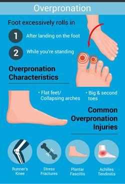 เท้าแป  เท้าเอียง เท้าแบน เจ็บนิ้วเท้า เจ็บนิ้วหัวแม่เท้า