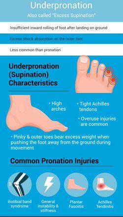 เท้าแบ เท้าล้มเอียง เจ็บนิ้วก้อยเท้า เจ็บนิ้วเท้า