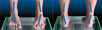 เท้าเอียง เท้าแบะ เท้าล้ม เจ็บเข่า ปวดหลัง เจ็บเท้า แผ่นรอง ตัดแผ่นรอง ทำแผ่นรอง ตัดทำแผ่นรอง custom made insole insole รองเท้า