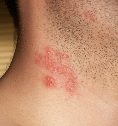 งูสวัดที่คอ โรคงูสวัด โรค งูสวัด อาการงูสวัด รักษางูสวัด การรักษางูสวัด