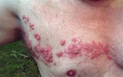 งูสวัดครึ่งซีก โรคงูสวัด โรค งูสวัด อาการงูสวัด รักษางูสวัด การรักษางูสวัด