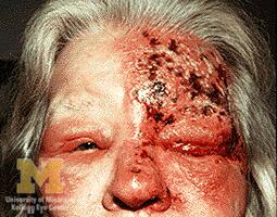 งูสวัดขึ้นตา โรคงูสวัด โรค งูสวัด อาการงูสวัด รักษางูสวัด การรักษางูสวัด