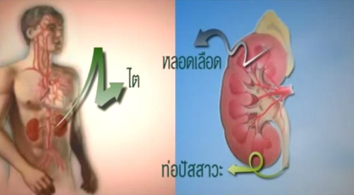 ไต,โรคไต,อาการไต,อาการโรคไต,รักษาโรคไต,รักษาไต,อาการโรคไตวาย,รักษาโรคไตวาย,รักษาไตวาย,การรักษาโรคไต,การรักษาไต,การรักษาโรคไตวาย