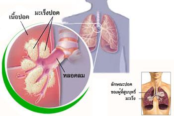 มะเร็งปอด ไอ ไอเรื้อรัง รักษาอาการไอ รักษาอาการไอเรื้อรัง