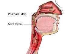 Postnasal drip syndrome ไอ ไอเรื้อรัง รักษาอาการไอ รักษาอาการไอเรื้อรัง